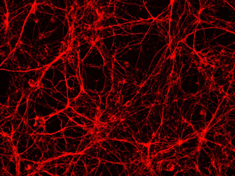 Synaptic networks. Photo: courtesy of  Dr. Silvija Jankeviciute.